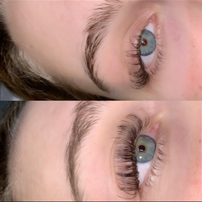 Refill Before and After