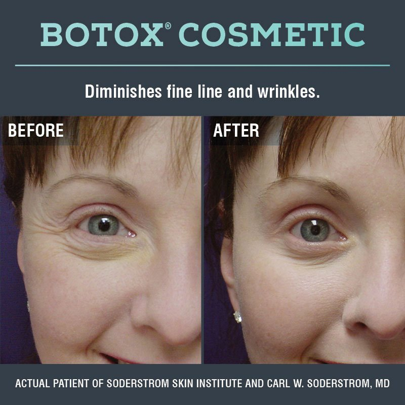Botox Cosmetic Before & After
