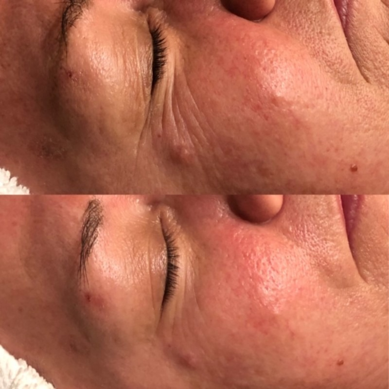 Anti-Aging Treatment: Before + After