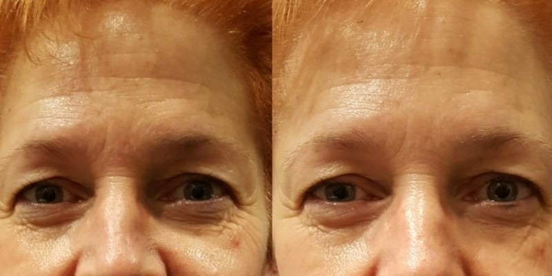 Renewal Treatment: Before + After
