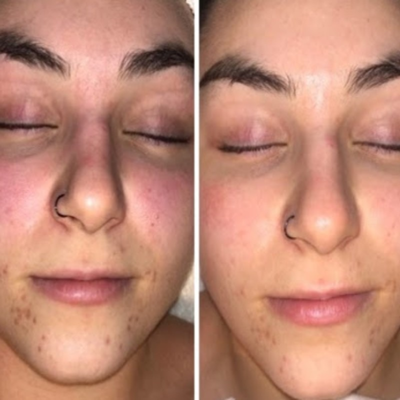 Acne Treatment: Before + After